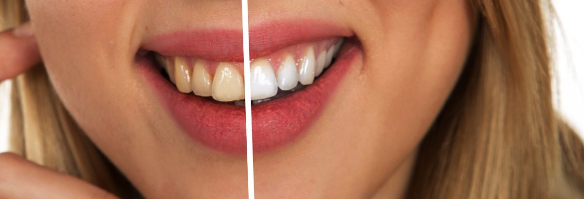 10 Cruelty-Free Teeth Whitening Products